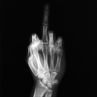 X-ray Fuck like Delvoye. S.Laurent