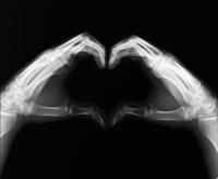X-Ray heart Sébastien Laurent