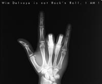 Wim Delvoye is not rock n